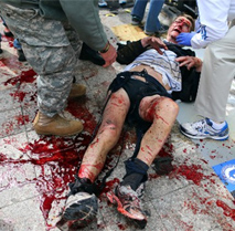 victim at Boston Marathon bombing