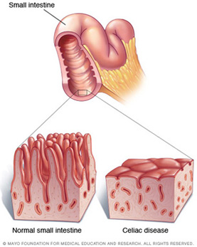 villi damage in small intestine due to celiac disease image by Mayo Fdn