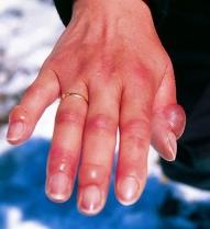 frostbite, blister, hand