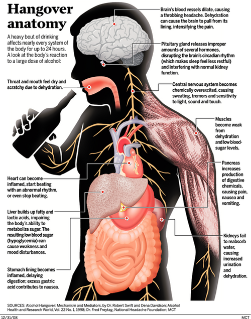 Anatomy Of A Hangover How A Body Typically Reacts To Large Doses Of