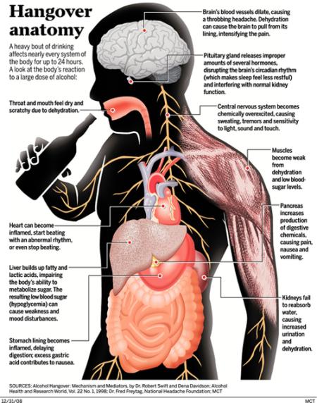 MCT: Hangover anatomy